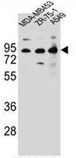 AP51136PU-N - CTTNBP2NL
