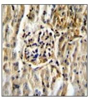 AP51163PU-N - CYP11B2