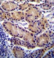 AP51171PU-N - CYP2S1