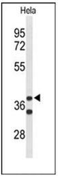 AP51177PU-N - Cytohesin 3