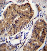 AP51195PU-N - Netrin receptor DCC