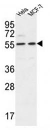 AP51226PU-N - DDX6