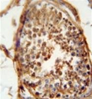AP51287PU-N - DNAJB13