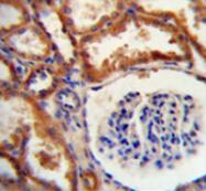 AP51293PU-N - DNAJC22