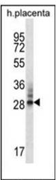AP51295PU-N - DNAJC27 / RBJ