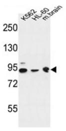 AP51296PU-N - DNAJC6