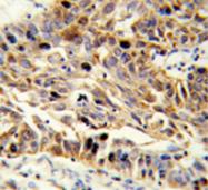 AP51374PU-N - Fibulin-3
