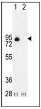 AP51429PU-N - CD105 / Endoglin
