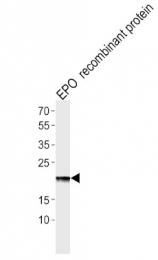 AP51461PU-N - Erythropoietin / EPO
