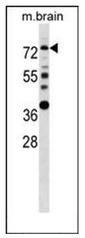 AP51464PU-N - Estrogen receptor alpha