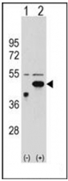AP51469PU-N - Ethanolamine kinase 2
