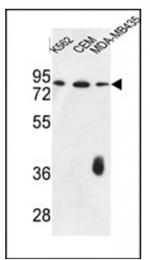 AP51493PU-N - Coagulation factor XII (F12)