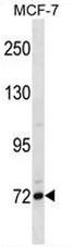 AP51645PU-N - CD307 / FCRL5