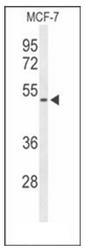 AP51689PU-N - Fibromodulin