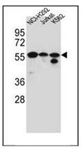 AP51717PU-N - FOXN2 / HTLF