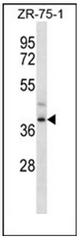 AP51721PU-N - FMLP-related receptor II