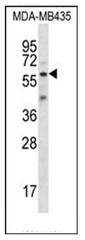 AP51728PU-N - Fascin-3