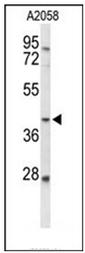 AP51737PU-N - Fucosyltransferase 3