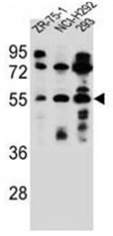 AP51740PU-N - Fucosyltransferase 6