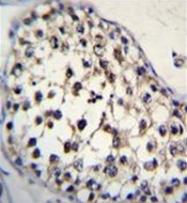 AP51742PU-N - Fucosyltransferase 8