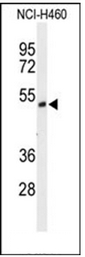 AP51744PU-N - FOXRED1