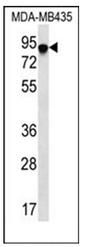 AP51746PU-N - FYN-binding protein