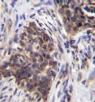 AP51752PU-N - Alpha-glucosidase / LYAG