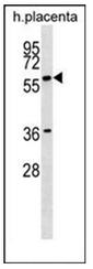 AP51753PU-N - GAB3