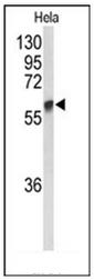 AP51767PU-N - GALNT2