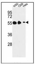 AP51776PU-N - GALR1