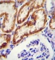AP51788PU-N - Glycine amidinotransferase