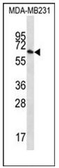 AP51791PU-N - GTP-binding protein 1 / GBP1