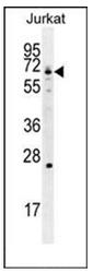AP51800PU-N - GCLC / GLCLC