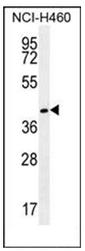 AP51829PU-N - Gamma-glutamyl hydrolase / GGH
