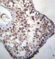 AP51847PU-N - GLCCI1