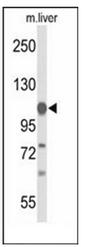 AP51849PU-N - Glycine decarboxylase / GLDC
