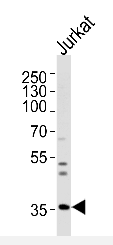 AP51858PU-N - Glycine receptor beta