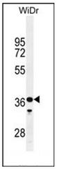 AP51861PU-N - GXYLT1 / GLT8D3