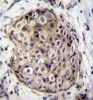 AP51869PU-N - GMP reductase 1 / GMPR1