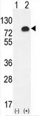 AP51904PU-N - Glypican-6 / GPC6