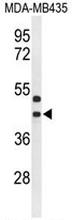 AP51923PU-N - GPR17