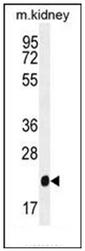 AP51939PU-N - Glutathione peroxidase 3 / GPX3