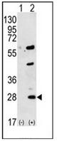 AP51947PU-N - Gremlin-1 / GREM1
