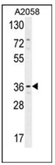 AP51957PU-N - Protein lifeguard 1