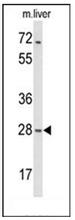 AP52010PU-N - MOB2 / HCCA2