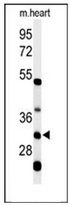 AP52011PU-N - HCCS / CCHL