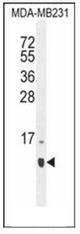 AP52012PU-N - HCFC1R1 / HPIP