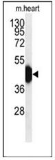 AP52036PU-N - HFE2 / Hemojuvelin
