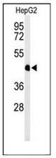 AP52037PU-N - HFE2 / Hemojuvelin