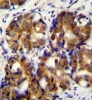 AP52063PU-N - CD168 / HMMR